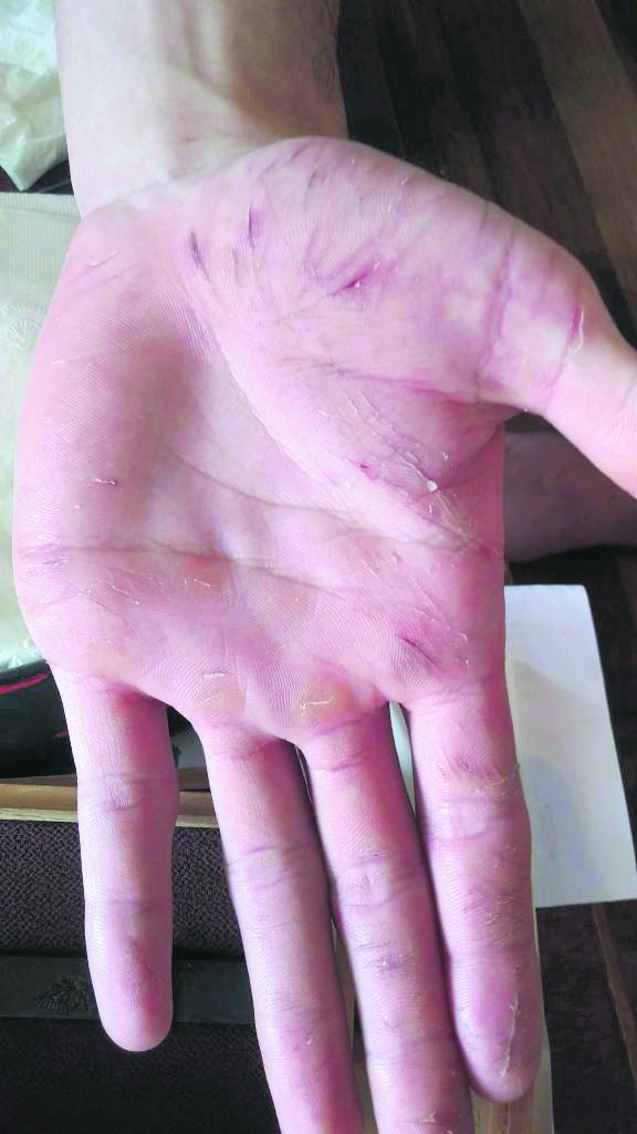 Nickolas' battle scars.